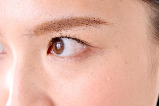 【目の周りのくすみ】3つの原因と消す方法!透明感のある目元に